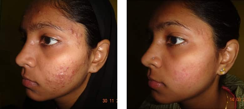 Acne-Before-After-1