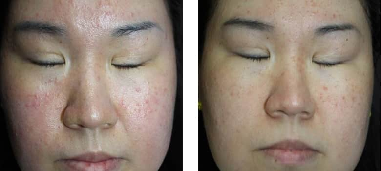 Acne-Before-After-4