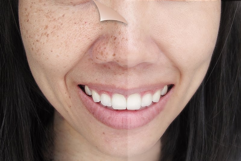 Asian Skin: About The Condition