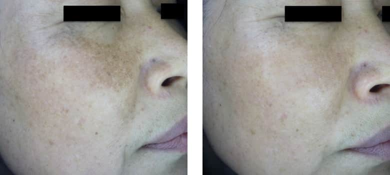 Asian-Skin-Before-After-1