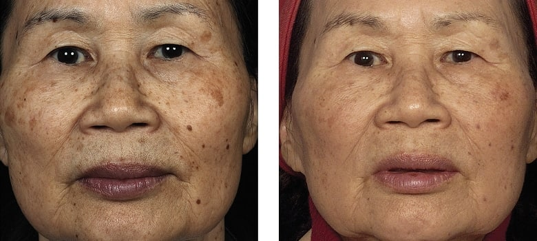 Asian-Skin-Before-After-2