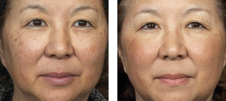 Asian-Skin-Before-After-3