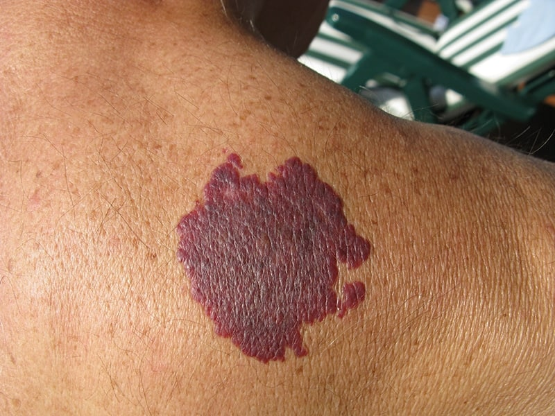 Birthmark: About The Condition
