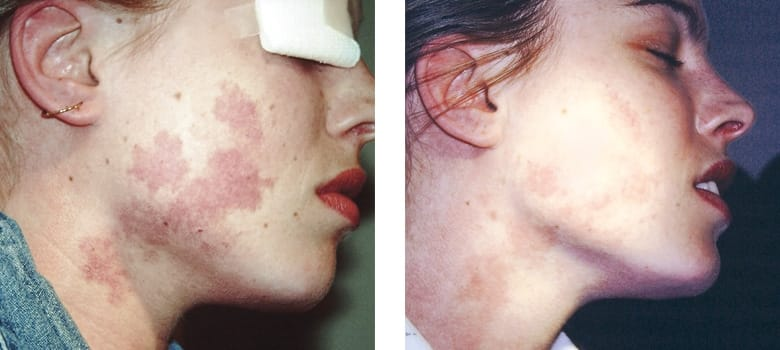 Birthmarks-Before-After-1