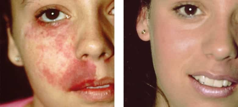 Birthmarks-Before-After-2
