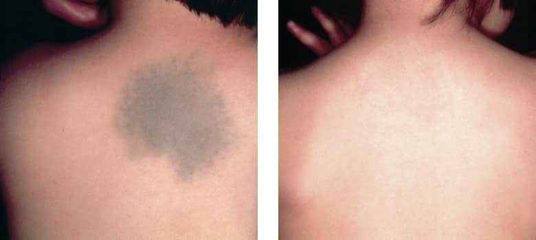 Birthmarks-Before-After-3