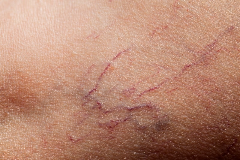 Broken Capillaries: About The Condition