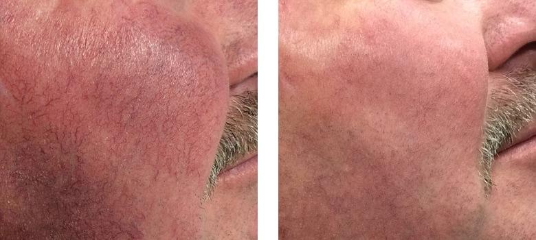Broken-Capillaries-Before-After-2