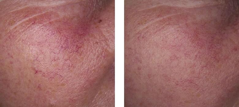 Broken-Capillaries-Before-After-5