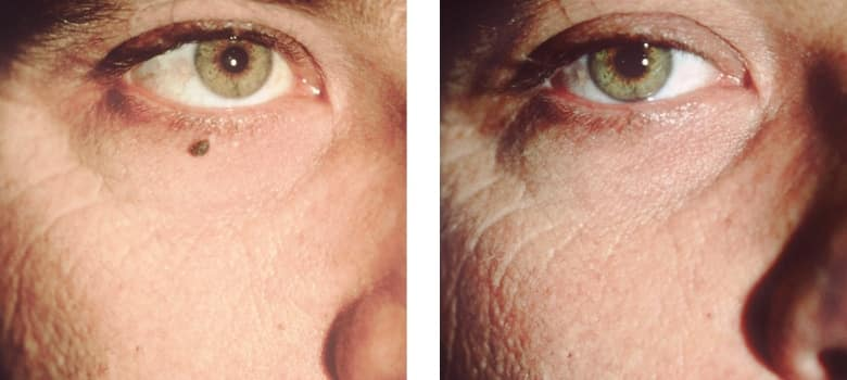 Brown-Spots-Before-After-1