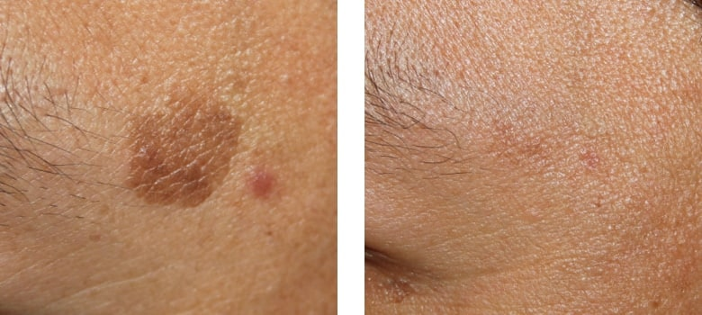 Brown-Spots-Before-After-3