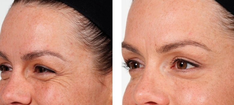 Eye-Rejuvenation-Before-After-1