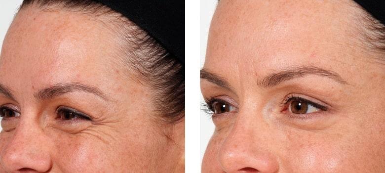 Eye-Rejuvenation-Before-After-1