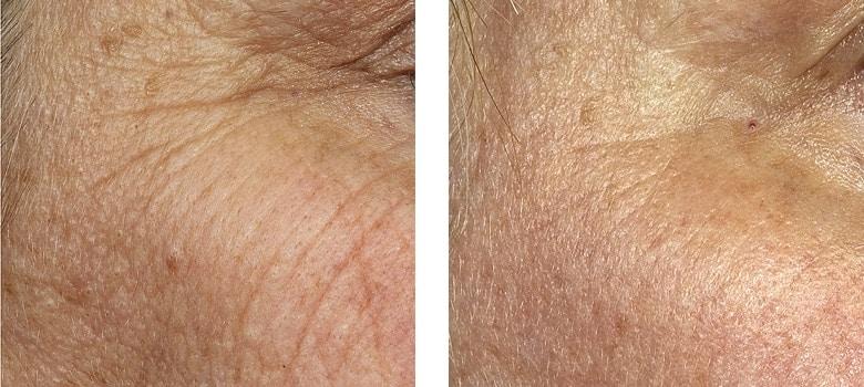 Eye-Rejuvenation-Before-After-2