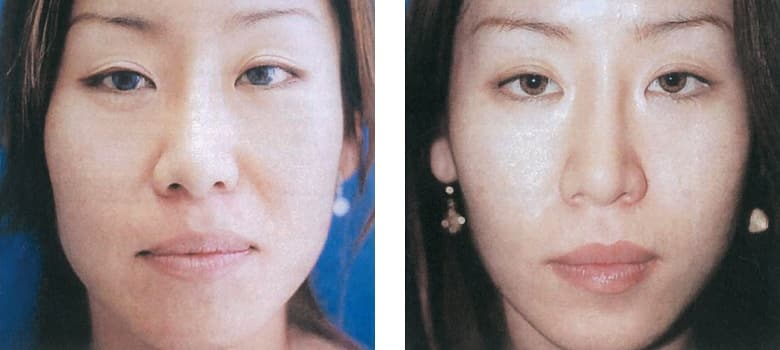 Facial-Reshaping-Before-After-1