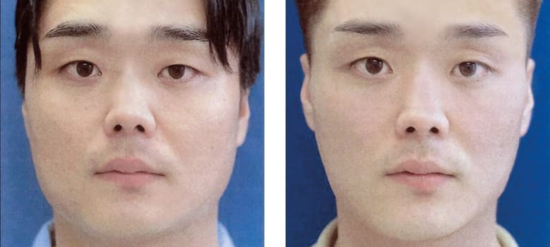 Facial-Reshaping-Before-After-2