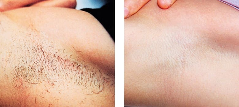 Hair-Removal-Before-After-1