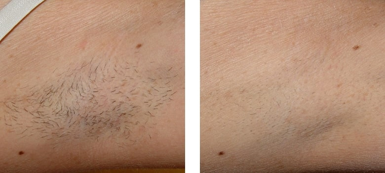 Hair-Removal-Before-After-3