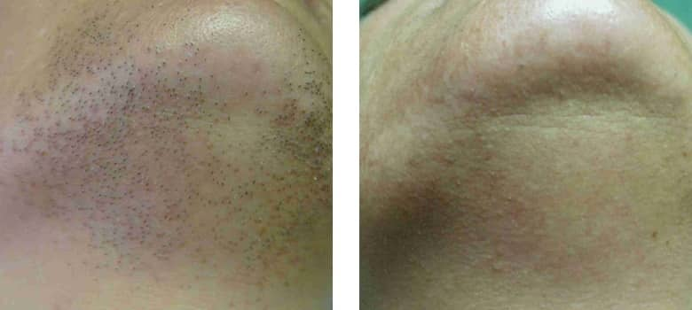Hair-Removal-Before-After-4