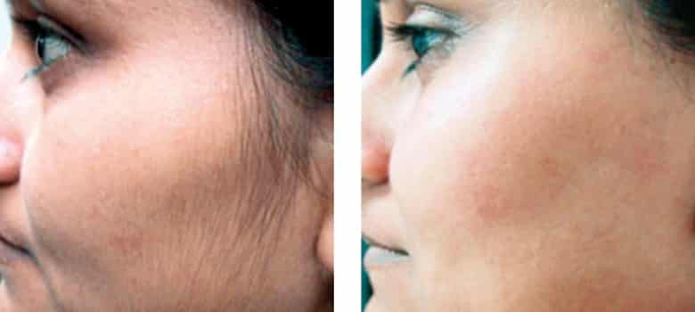 Hair-Removal-Before-After-5