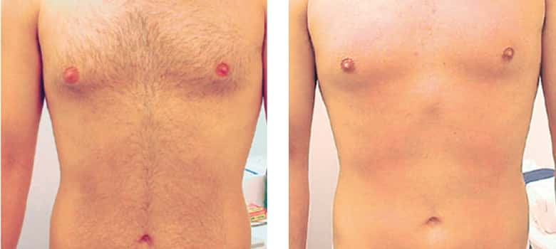 Hair-Removal-Before-After-6