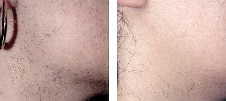 Hair-Removal-Before-After-7