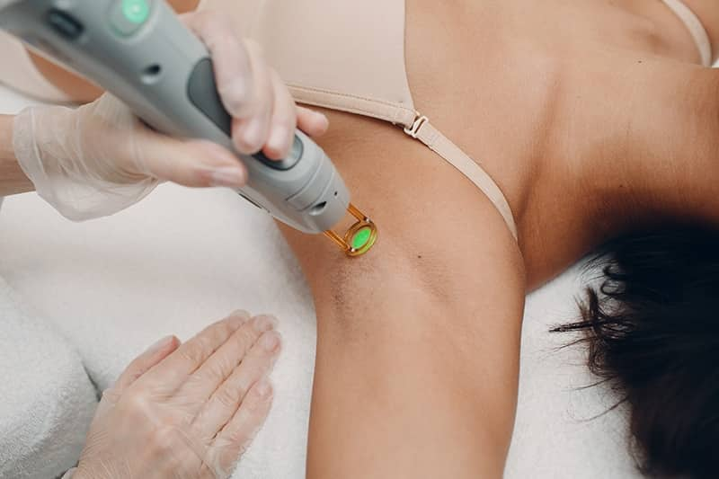 Hair Removal: Our Approach