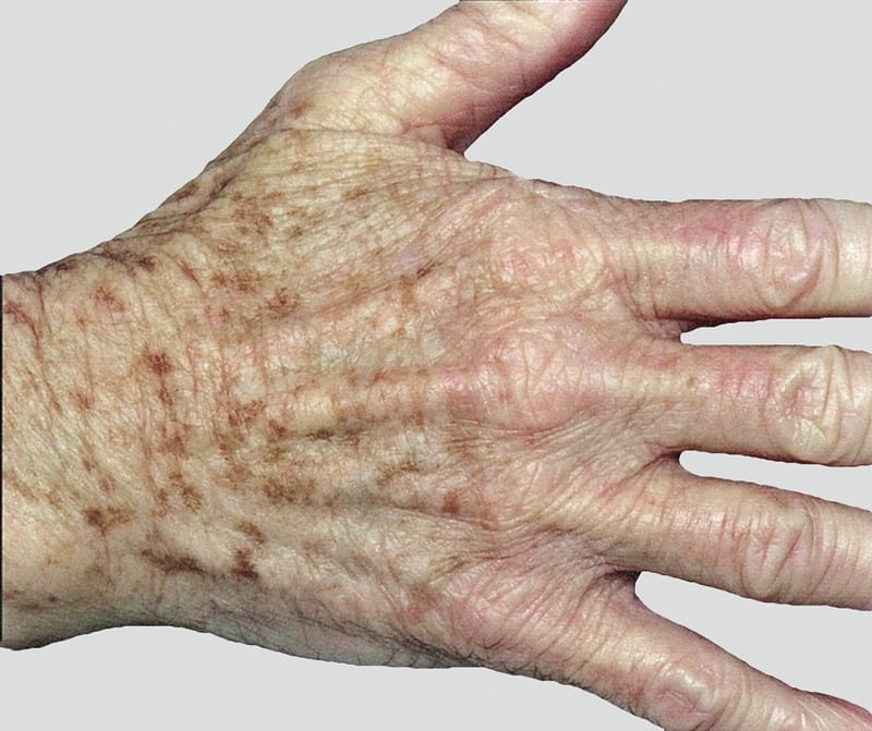 Hand Rejuvenation: About The Condition