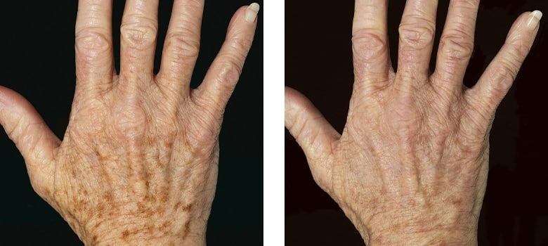 Hand-Rejuvenation-Before-After-1
