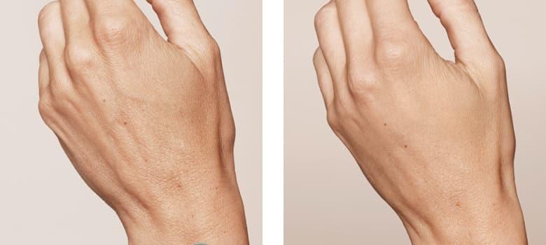Hand-Rejuvenation-Before-After-2