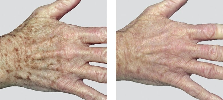 Hand-Rejuvenation-Before-After-3
