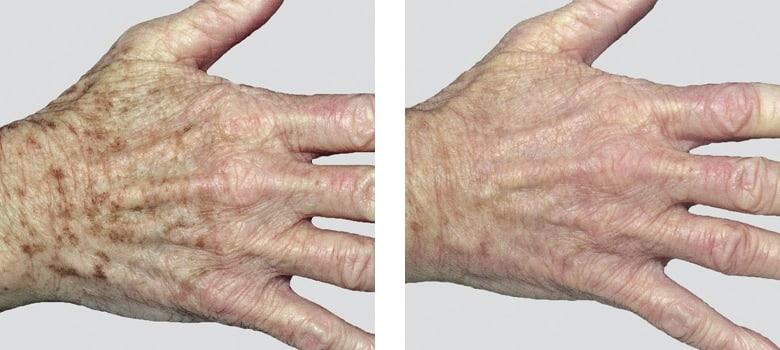 Hand-Rejuvenation-Before-After-3