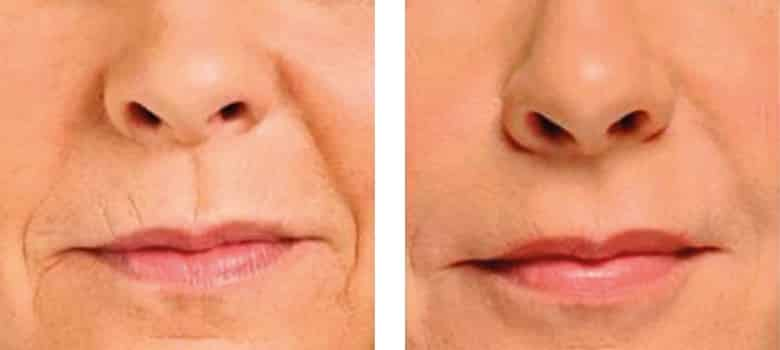 Lip-Augmentation-Before-After-1