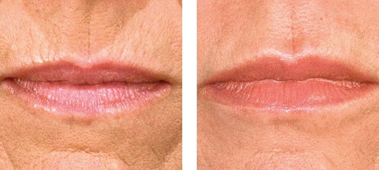 Lip-Augmentation-Before-After-3