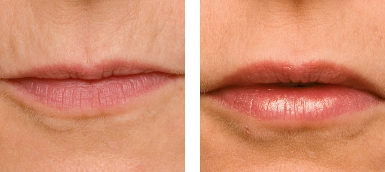 Lip-Augmentation-Before-After-4