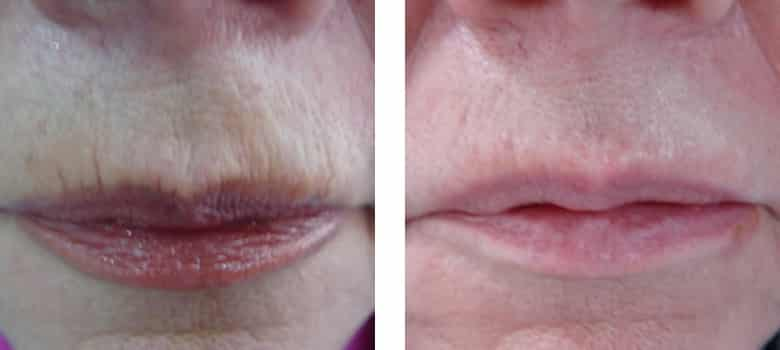 Lip-Augmentation-Before-After-5