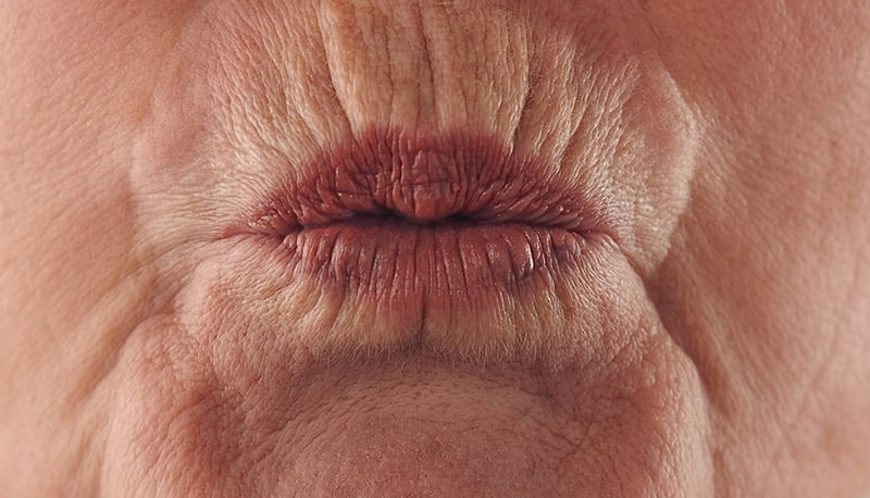 Lip Rejuvenation: About The Condition
