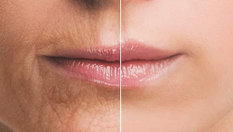 Lip Rejuvenation: Our Approach