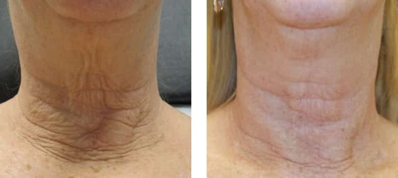 Neck-Rejuvenation-Before-After-1