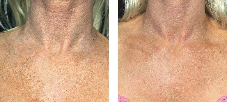 Neck-Rejuvenation-Before-After-3