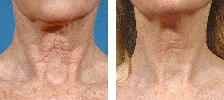 Neck-Rejuvenation-Before-After-4