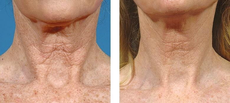 Neck-Rejuvenation-Before-After-4