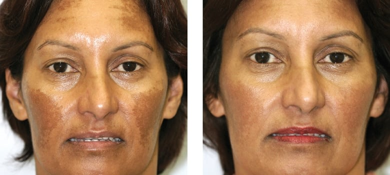 Pigmentation-Before-After-1