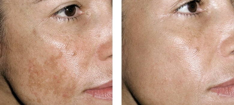 Pigmentation-Before-After-2