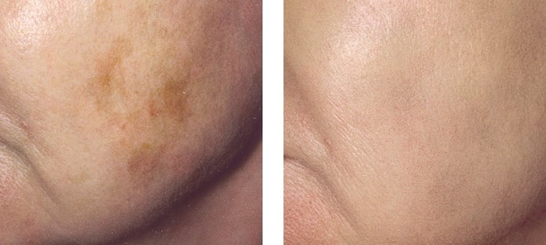 Pigmentation-Before-After-3