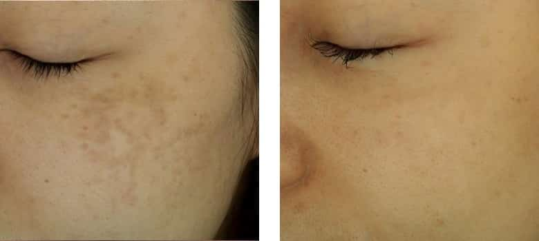 Pigmentation-Before-After-4