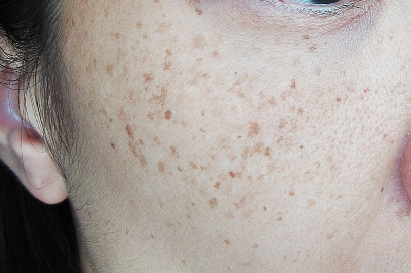 Pigmentation: Our Approach
