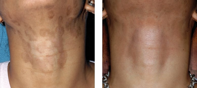 Scarring-Before-After-1