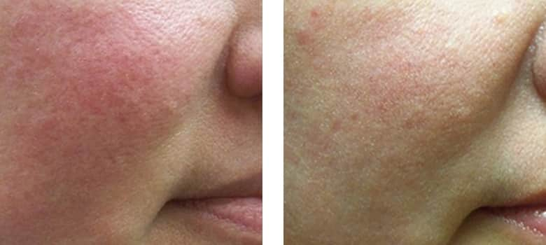 Skin-Redness-Before-After-1
