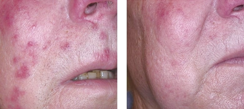 Skin-Redness-Before-After-2